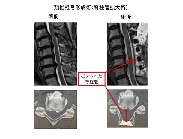 頚椎椎弓形成術(脊柱管拡大術)