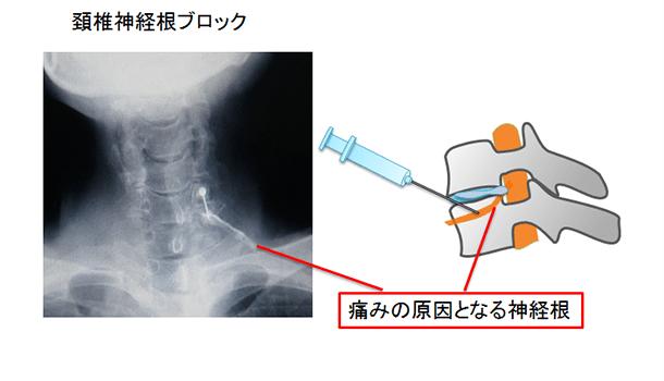頚椎症性神経根ブロック