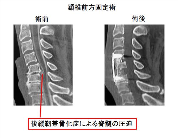 頚椎前方固定術
