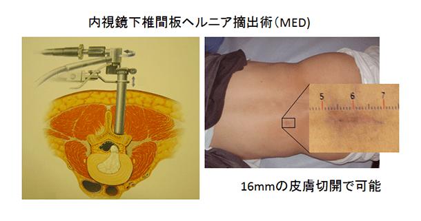 内視鏡下椎間板ヘルニア摘出術(MED)