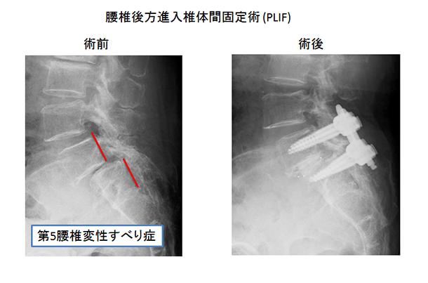 腰椎後方進入椎体間固定術(PLIF)