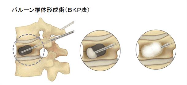 バルーン椎体形成術(BKP法)